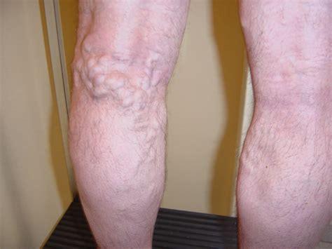 photo of photos soigner varices traitement des varices des