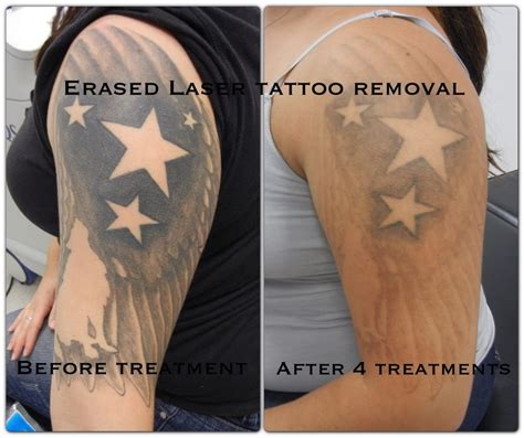laser tattoo removal after one treatment after the 4th treatment erased removal las vegas