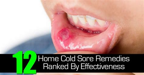 12 home cold sore remedies ranked by effectiveness