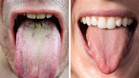 what color should your tongue be researchers explain what the color of your tongue says