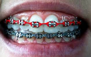 cool braces colors pretty braces colors www imgkid the image kid has it