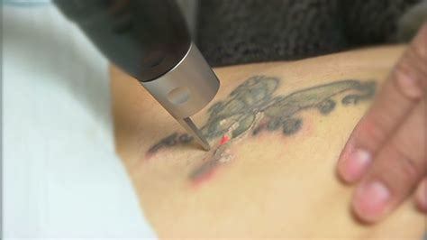 tattoo removal story and neck tattoos not widely accepted cnn