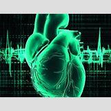 Human Heart With Heart Disease | 400 x 300 jpeg 51kB