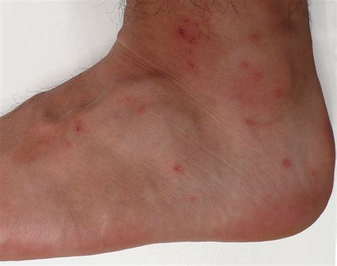 Chiggers In Bed by Chiggers Mite Bites Rash Pictures Treatment