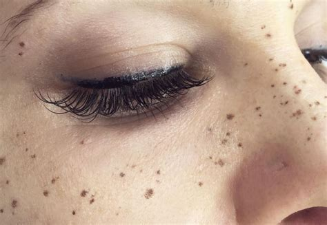 freckle tattoos are now getting freckles tattooed on their faces