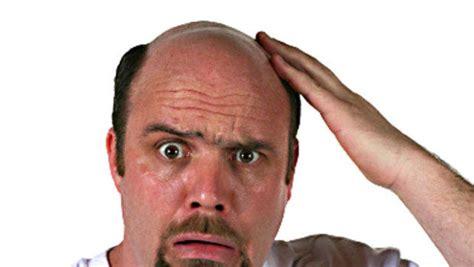 male pattern baldness artinya is male pattern baldness an early warning sign of prostate
