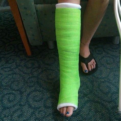 Or Casts 27 Best Images About Fabulous Leg Casts On
