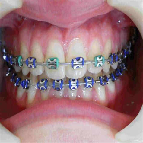 color braces color orthodontic braces colors braces pinterest