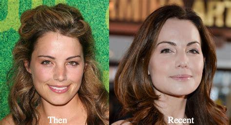 erica mena plastic surgery erica mena plastic surgery pictures erica durance plastic