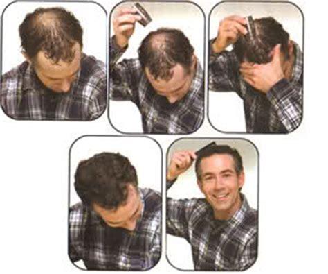 men long hair cover bald spot capilus com seu shopping contra a calv 237 cie no brasil
