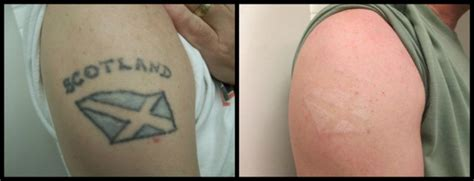 black ink tattoo removal removal before and after photos from rethink the