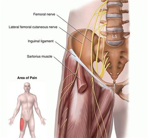 ernia inguinale interna l ernia inguinale dello sportivo una causa frequente di