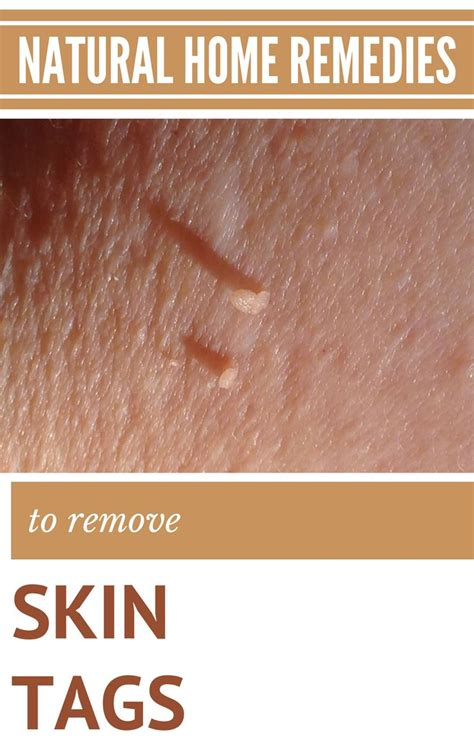 best 25 skin tag treatment ideas on