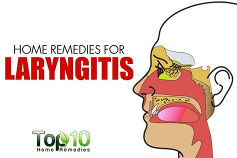 home remedies for laryngitis top 10 home remedies