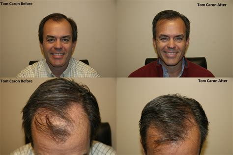 prescreened hair transplant physicians dr leonard hair transplant hairstylegalleries com