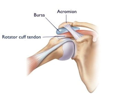 replacement shoulder information shoulder impingement syndrome birmingham shoulder joint