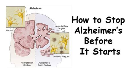 preventing alzheimer s alzheimer s factors prevention steps and foods that prevent or alzheimer s recipes for alzheimer s prevention diet essential spices and herbs books 10 things to do to prevent alzheimer s disease points tricks