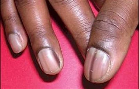 dark line on fingernail which nail problems indicate health issues