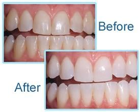laser teeth whitening quora