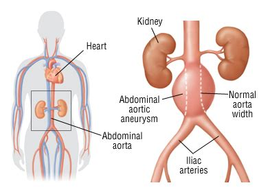 abdominal aortic aneurysm harvard health
