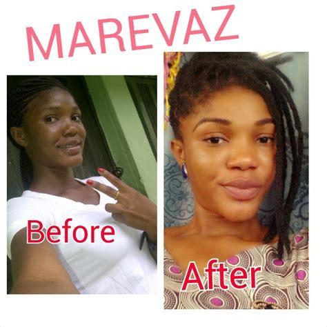 Sabun Dr Brightening Soap Acne Care 1 best skin lightening toning soap fashion 8 nigeria