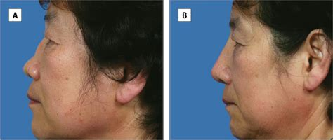 treatment outcomes of saddle nose correction jama