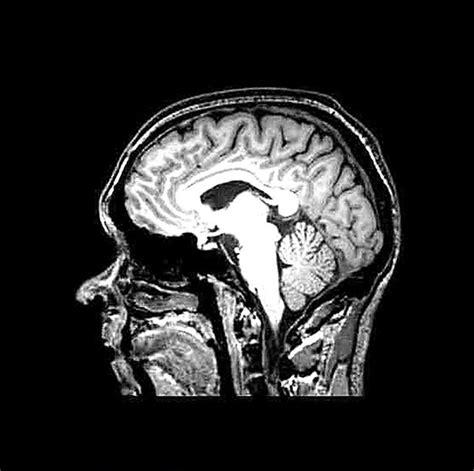 grey matter technology tech whizz eats his brain as part of 3d technology