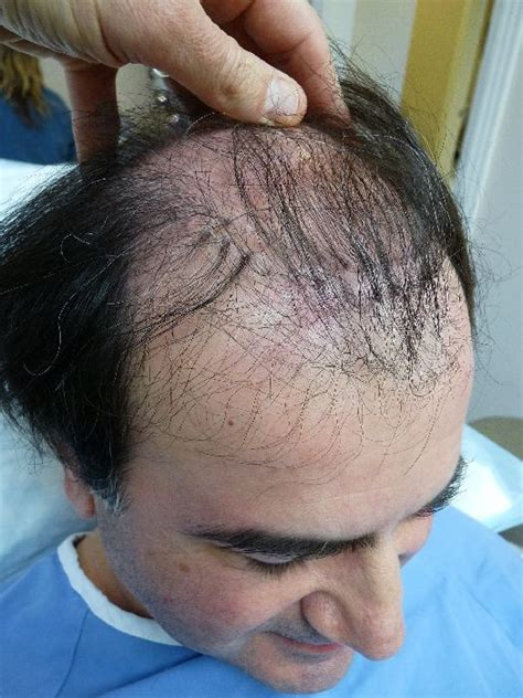 hair plugs for image