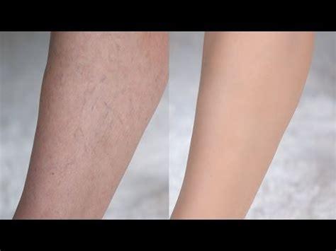 tattoo cover up veins youtube com videos leg makeup for varicose veins videos