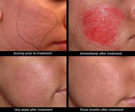 tattoo needle for acne scars before and after dermapen treatments at cheshire lasers