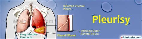 pleuritis causes symptoms signs treatment