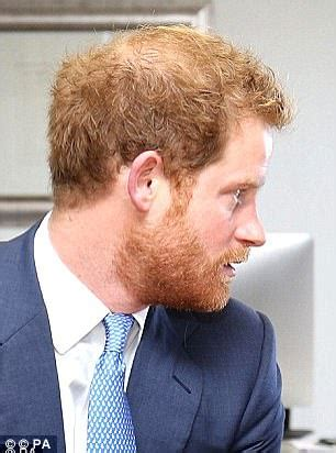 harry styles losing hair has prince harry turned to caviar pills to cure baldness
