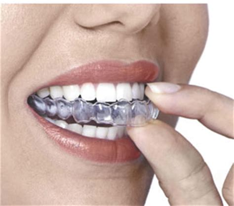 dental mouth guard only nudesxxx