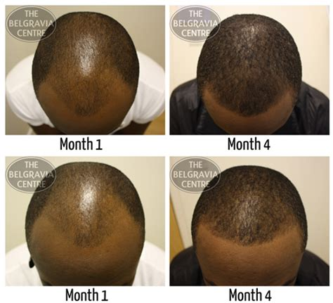 hairline restoration for black men has lebron james had hair loss treatment