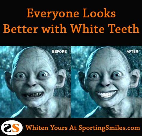 teeth whitening jokes