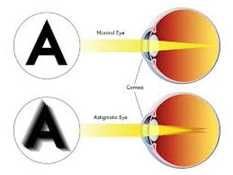 astigmatism spx opticians ltd