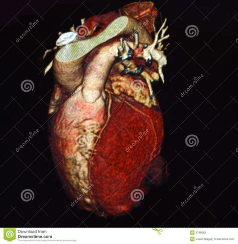 heart computed tomography stock photography image