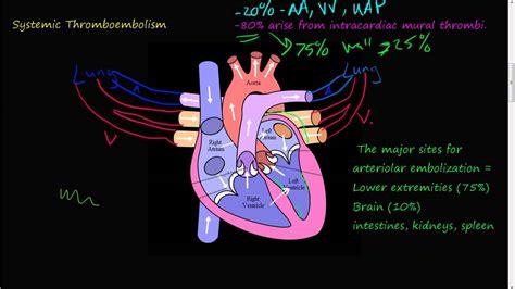 p systemic thromboembolism youtube