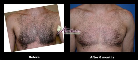 chest tattoo removal before after photos and stories aesthetic skin laser center