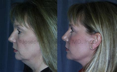 face lifts for women over 50 facelifts for 50 facelift before and after photos dr