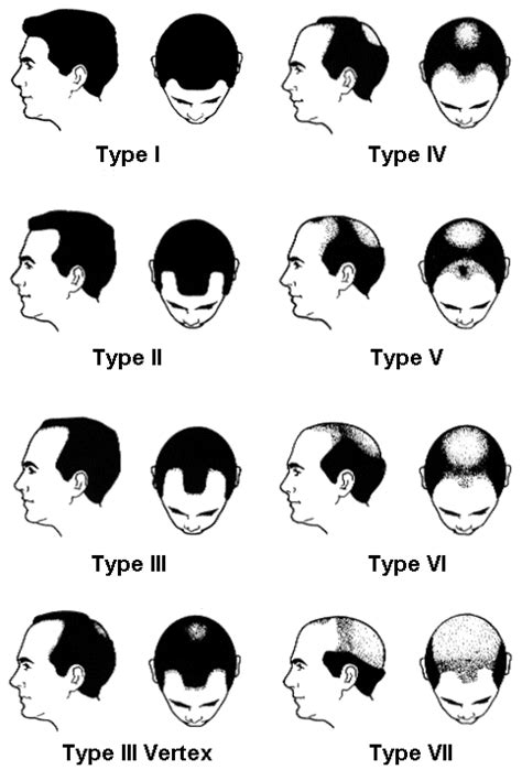 types of hairlines norwood scale of male pattern baldness