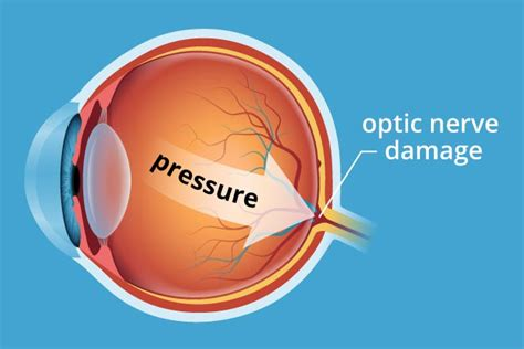 glaucoma treatment glaucoma symptoms treatment and prevention