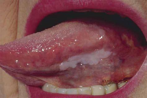 imagenes de manchas blancas en la boca manchas en la lengua rojas blancas negras c 225 ncer y