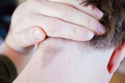 preventing ingrown hairs on neck after haircut how to prevent ingrown hairs on neck after shaving