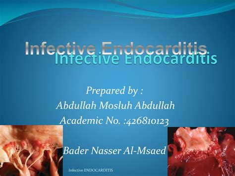 infective endocarditis powerpoint