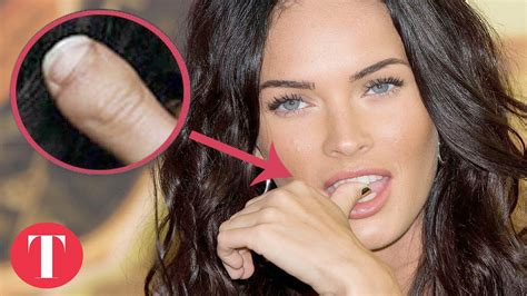 best celeb news 10 celebrities with physical deformities top embeded