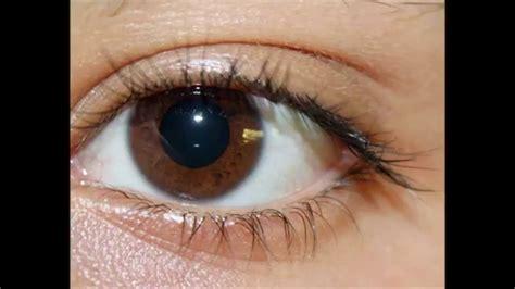Obat Katarak Alami 22 obat alami untuk mengatasi mata katarak seruni id