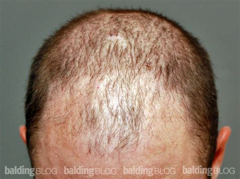 Hair Transplant Shedding by Hair Loss Informationanother Hair Transplant Failure This