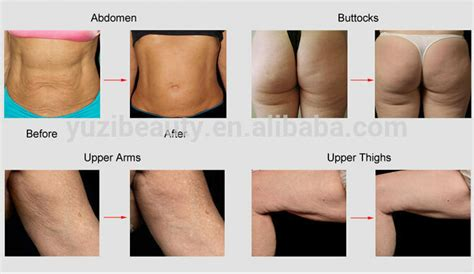 Did Banks Liposuction by Far Infrared Sauna Blanket For Building Buy Far