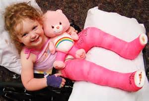 Cp Kid the treatment of cerebral palsy at shriners hospitals for